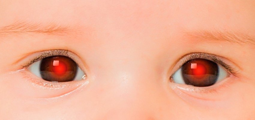 Teste do reflexo vermelho de Bruckner